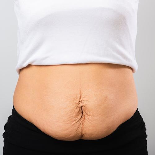 Core Exercise To Trim & Tone Mummy Tummy
